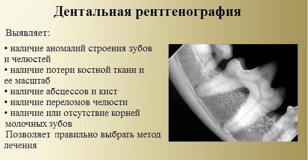дентальный рентген